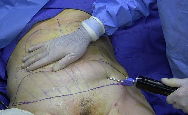 fatinjection