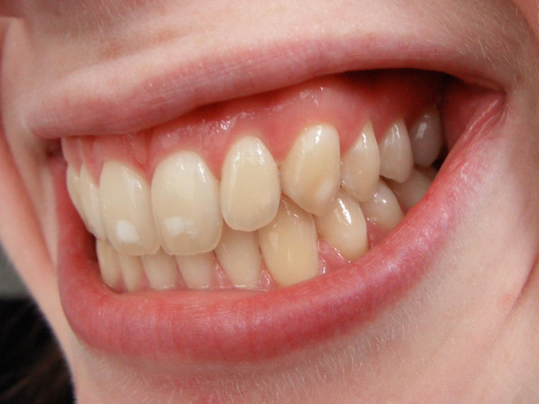 yellowteeth