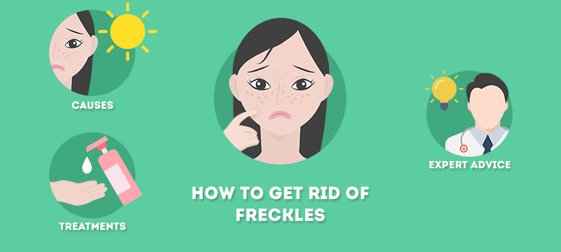 How-to-get-rid-of-freckles-800x360